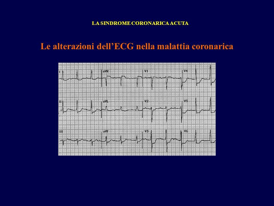 Le alterazioni dellECG nella malattia coronarica LA SINDROME CORONARICA ACUTA