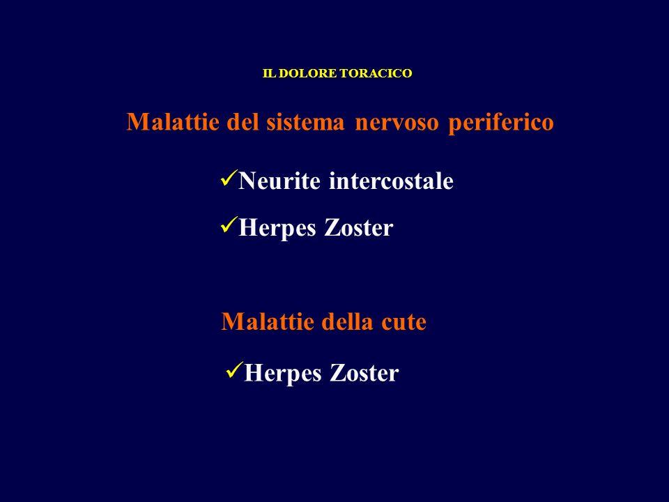 Neurite intercostale Herpes Zoster Malattie del sistema nervoso periferico IL DOLORE TORACICO Herpes Zoster Malattie della cute