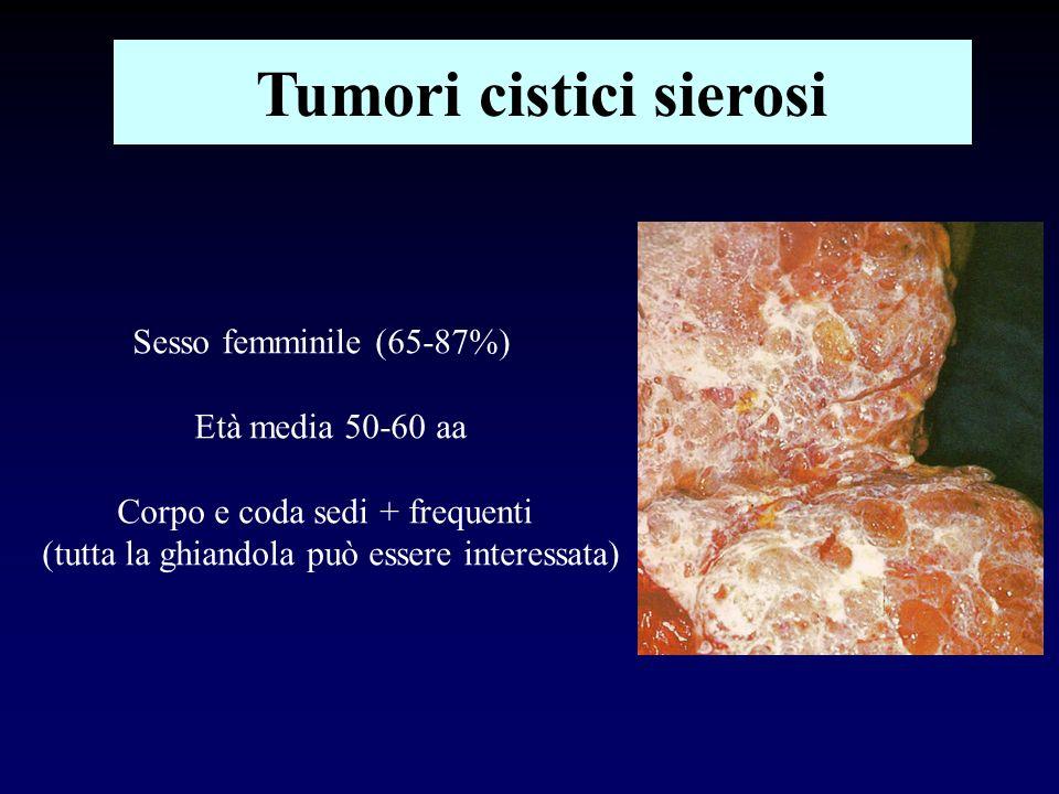 Tumori cistici sierosi Sesso femminile (65-87%) Età media 50-60 aa Corpo e coda sedi + frequenti (tutta la ghiandola può essere interessata)