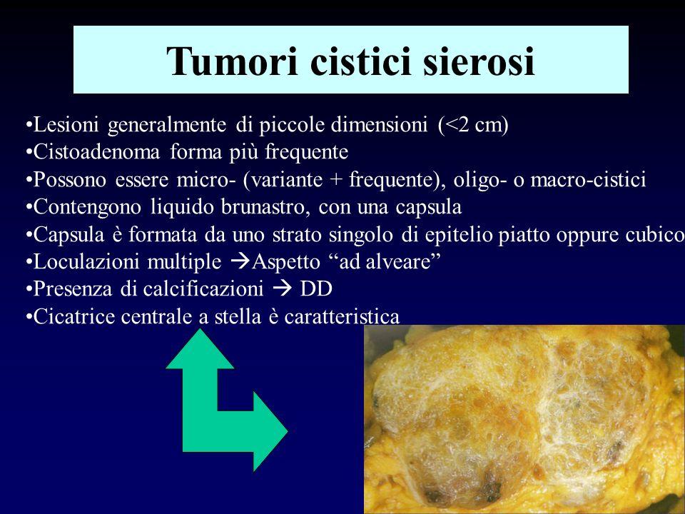 Tumori cistici sierosi Lesioni generalmente di piccole dimensioni (<2 cm) Cistoadenoma forma più frequente Possono essere micro- (variante + frequente