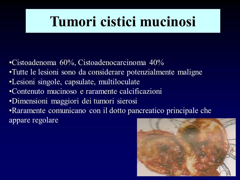 Tumori cistici mucinosi Cistoadenoma 60%, Cistoadenocarcinoma 40% Tutte le lesioni sono da considerare potenzialmente maligne Lesioni singole, capsula