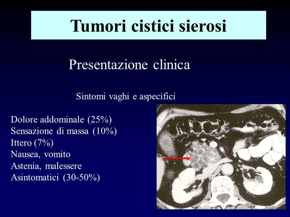 30 Kimura W et AL.Analysis of small cystic lesions of the pancreas.