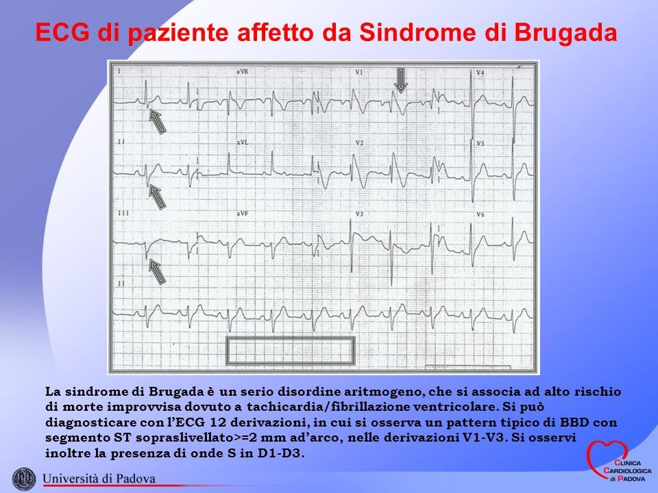 ECG di paziente affetto da Sindrome di Brugada La sindrome di Brugada è un serio disordine aritmogeno, che si associa ad alto rischio di morte improvvisa dovuto a tachicardia/fibrillazione ventricolare.