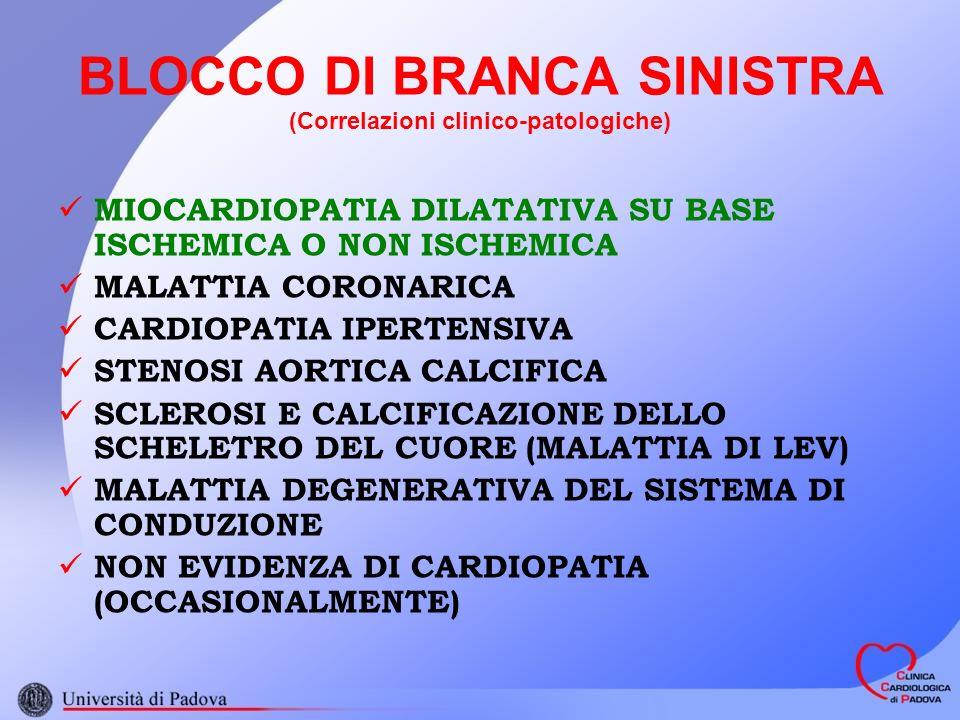BLOCCO DI BRANCA SINISTRA (Correlazioni clinico-patologiche) MIOCARDIOPATIA DILATATIVA SU BASE ISCHEMICA O NON ISCHEMICA MALATTIA CORONARICA CARDIOPATIA IPERTENSIVA STENOSI AORTICA CALCIFICA SCLEROSI E CALCIFICAZIONE DELLO SCHELETRO DEL CUORE (MALATTIA DI LEV) MALATTIA DEGENERATIVA DEL SISTEMA DI CONDUZIONE NON EVIDENZA DI CARDIOPATIA (OCCASIONALMENTE)