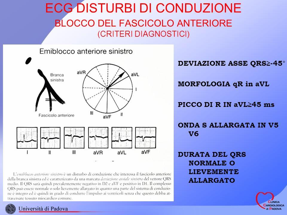 ECG DISTURBI DI CONDUZIONE BLOCCO DEL FASCICOLO ANTERIORE (CRITERI DIAGNOSTICI) DEVIAZIONE ASSE QRS-45° MORFOLOGIA qR in aVL PICCO DI R IN aVL45 ms ONDA S ALLARGATA IN V5 V6 DURATA DEL QRS NORMALE O LIEVEMENTE ALLARGATO