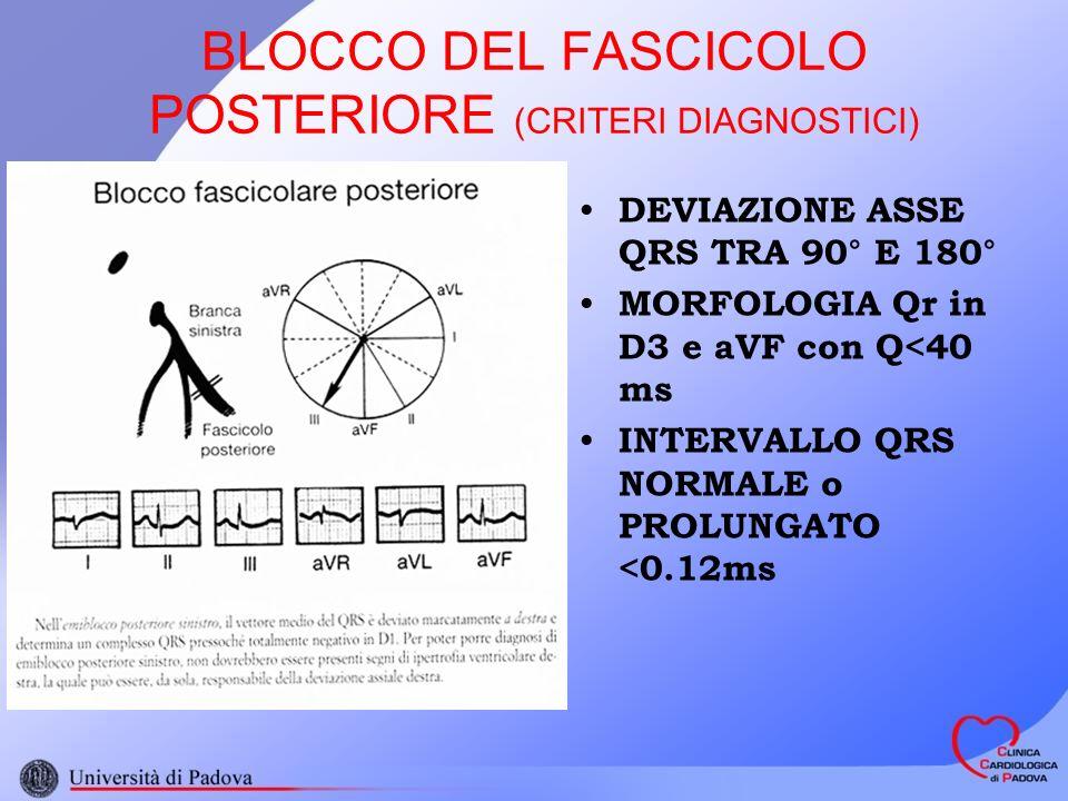 BLOCCO DEL FASCICOLO POSTERIORE (CRITERI DIAGNOSTICI) DEVIAZIONE ASSE QRS TRA 90° E 180° MORFOLOGIA Qr in D3 e aVF con Q<40 ms INTERVALLO QRS NORMALE o PROLUNGATO <0.12ms