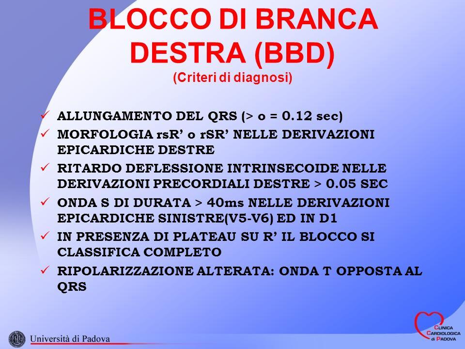 BLOCCO DI BRANCA DESTRA (BBD) (Criteri di diagnosi) ALLUNGAMENTO DEL QRS (> o = 0.12 sec) MORFOLOGIA rsR o rSR NELLE DERIVAZIONI EPICARDICHE DESTRE RITARDO DEFLESSIONE INTRINSECOIDE NELLE DERIVAZIONI PRECORDIALI DESTRE > 0.05 SEC ONDA S DI DURATA > 40ms NELLE DERIVAZIONI EPICARDICHE SINISTRE(V5-V6) ED IN D1 IN PRESENZA DI PLATEAU SU R IL BLOCCO SI CLASSIFICA COMPLETO RIPOLARIZZAZIONE ALTERATA: ONDA T OPPOSTA AL QRS