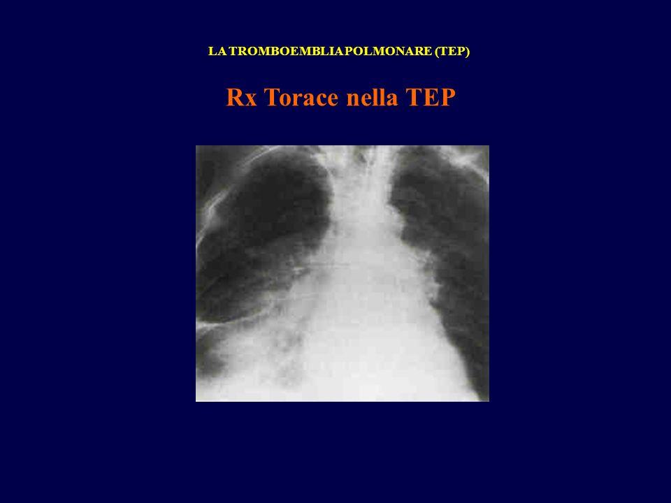 Rx Torace nella TEP LA TROMBOEMBLIA POLMONARE (TEP)