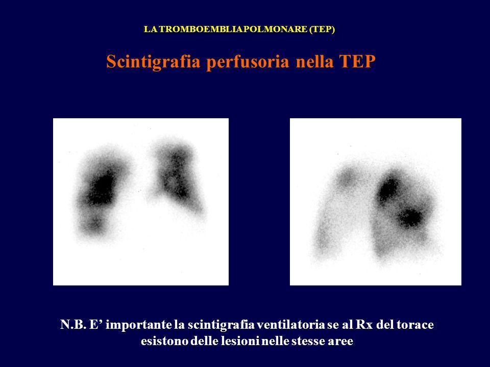 LA TROMBOEMBLIA POLMONARE (TEP) Scintigrafia perfusoria nella TEP N.B. E importante la scintigrafia ventilatoria se al Rx del torace esistono delle le