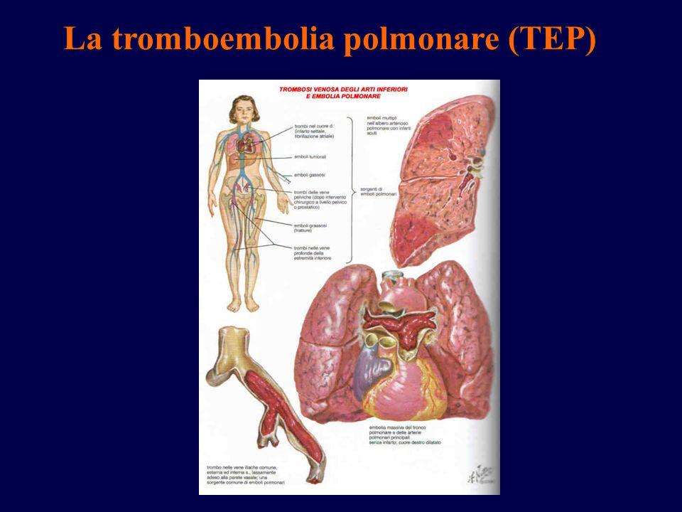 La tromboembolia polmonare (TEP)