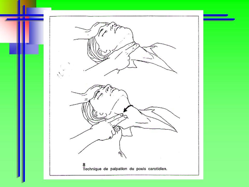 La verifica viene eseguita osservando, ascoltando e cercando di percepire: MOvimenti olso carotideo (per esperti)Tosse Polso carotideo (per esperti) R