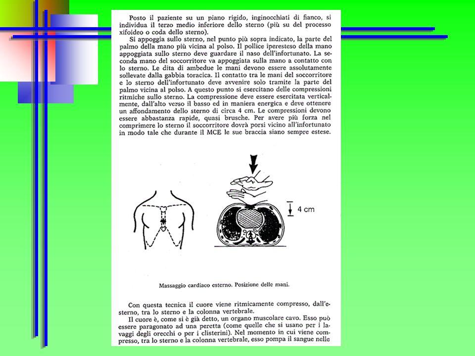 Collocare le mani al centro del torace della persona soccorsa in corrispondenza della metà inferiore dello sterno Comprimere il torace premendo in bas