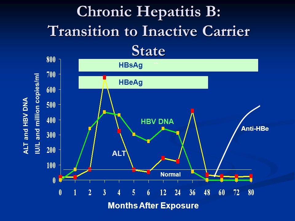 Chronic Hepatitis B: Transition to Inactive Carrier State ALT `` HBsAg HBeAg HBV DNA Normal Months After Exposure ALT and HBV DNA IU/L and million cop