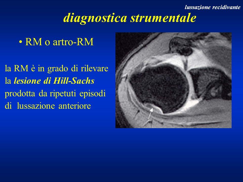 RM o artro-RM la RM è in grado di rilevare la lesione di Hill-Sachs prodotta da ripetuti episodi di lussazione anteriore diagnostica strumentale lussa