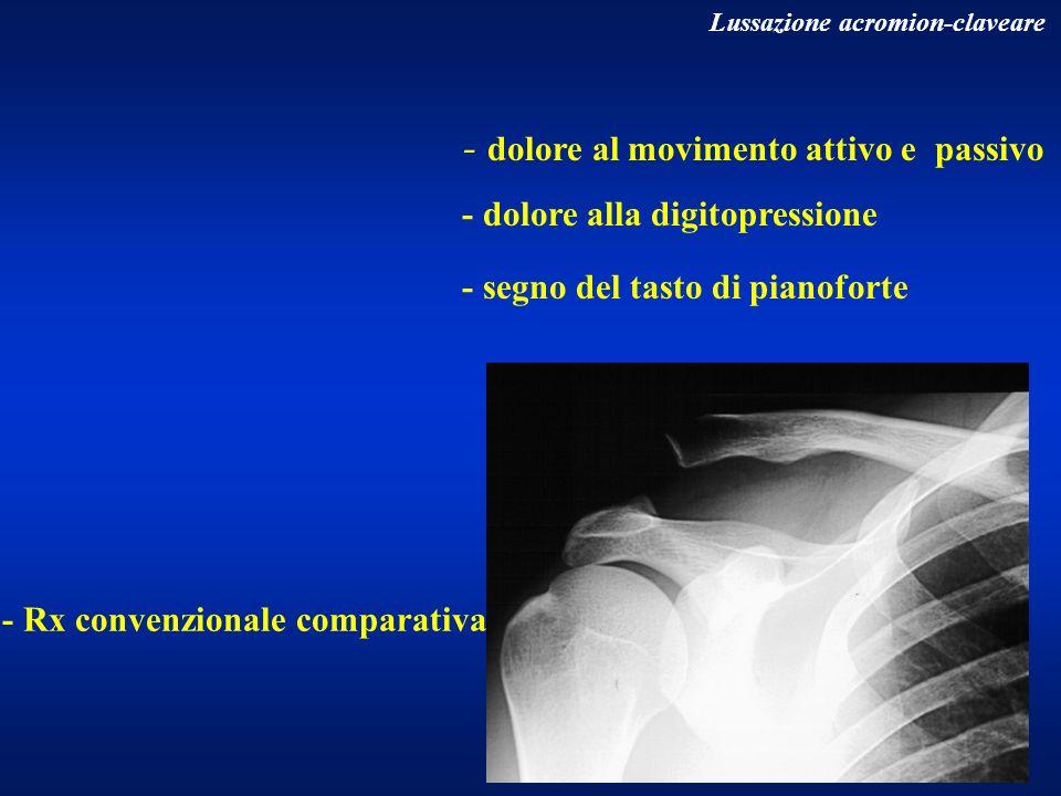 - dolore al movimento attivo e passivo - dolore alla digitopressione - segno del tasto di pianoforte Lussazione acromion-claveare - Rx convenzionale c