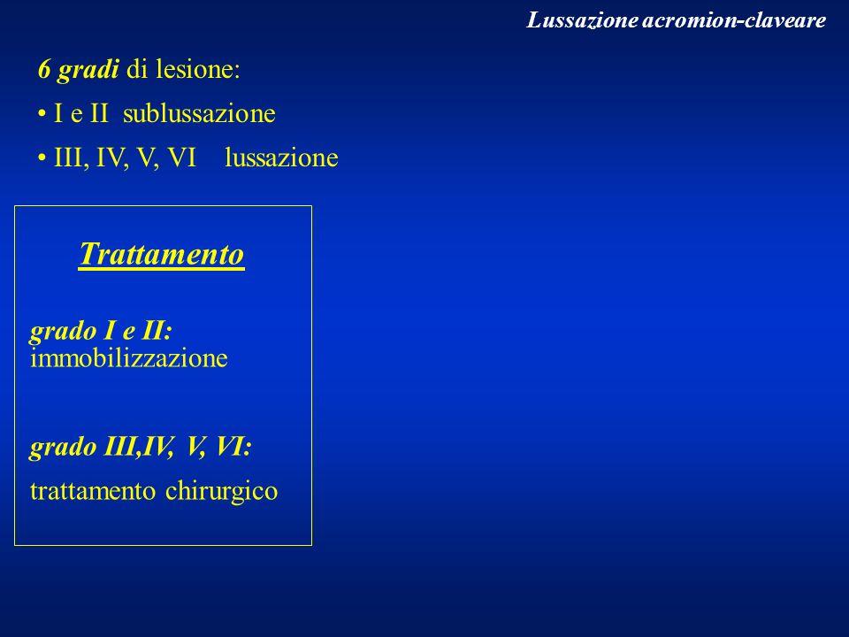 6 gradi di lesione: I e II sublussazione III, IV, V, VI lussazione Lussazione acromion-claveare Trattamento grado I e II: immobilizzazione grado III,I
