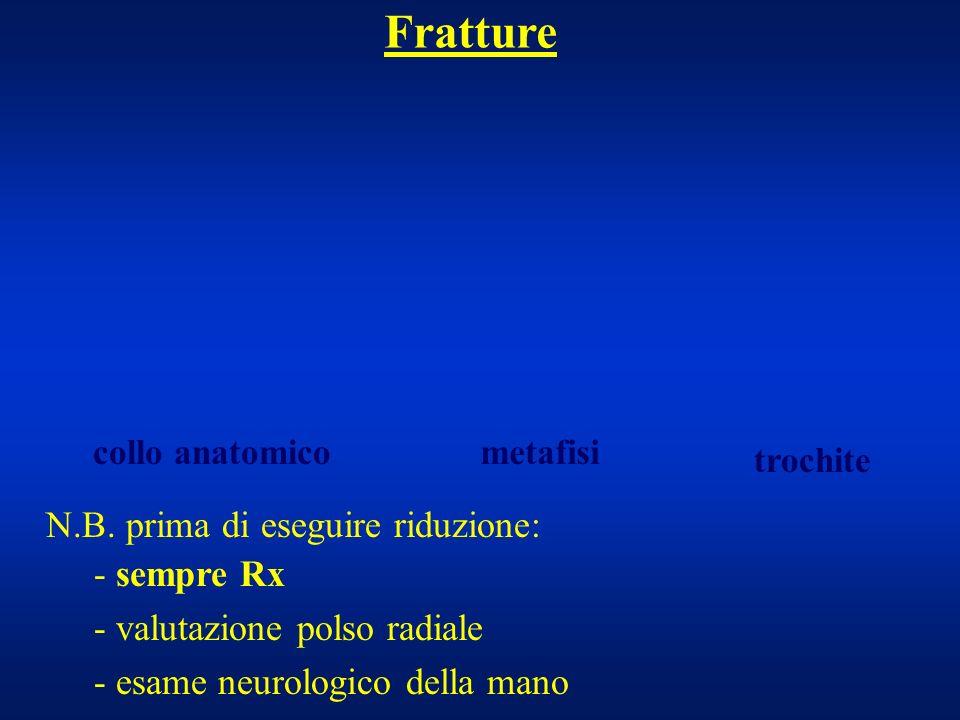 N.B. prima di eseguire riduzione: - sempre Rx - valutazione polso radiale - esame neurologico della mano Fratture collo anatomicometafisi trochite