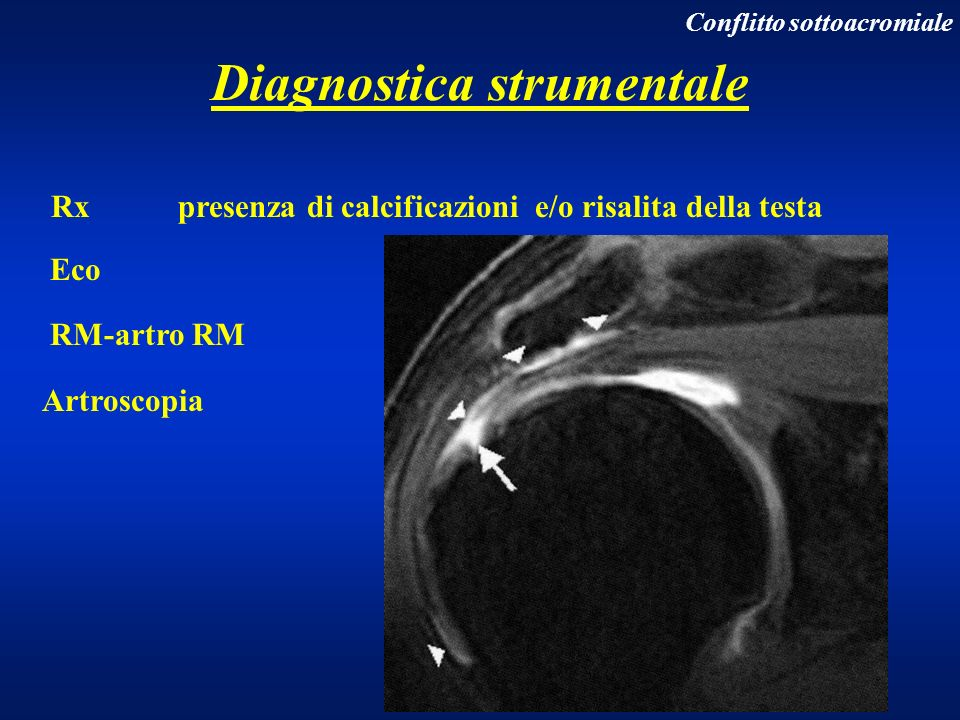 Rx presenza di calcificazioni e/o risalita della testa Eco RM-artro RM Artroscopia Diagnostica strumentale Conflitto sottoacromiale