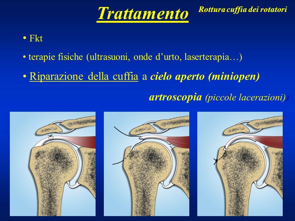 Trattamento Fkt terapie fisiche (ultrasuoni, onde durto, laserterapia…) Riparazione della cuffia a cielo aperto (miniopen) artroscopia (piccole lacera