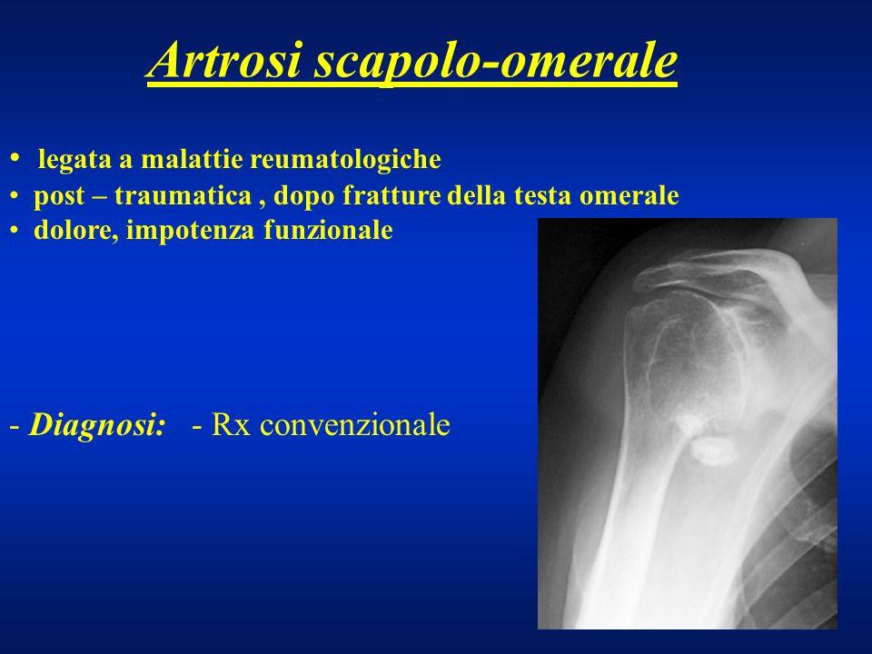 Artrosi scapolo-omerale legata a malattie reumatologiche post – traumatica, dopo fratture della testa omerale dolore, impotenza funzionale - Diagnosi: