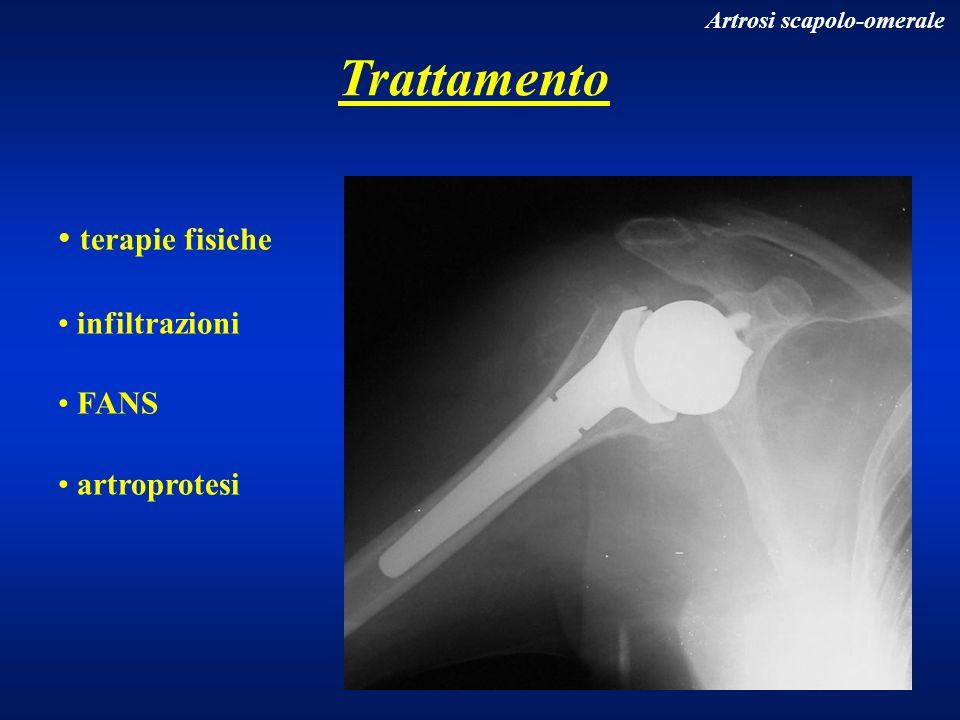Trattamento terapie fisiche infiltrazioni FANS artroprotesi Artrosi scapolo-omerale