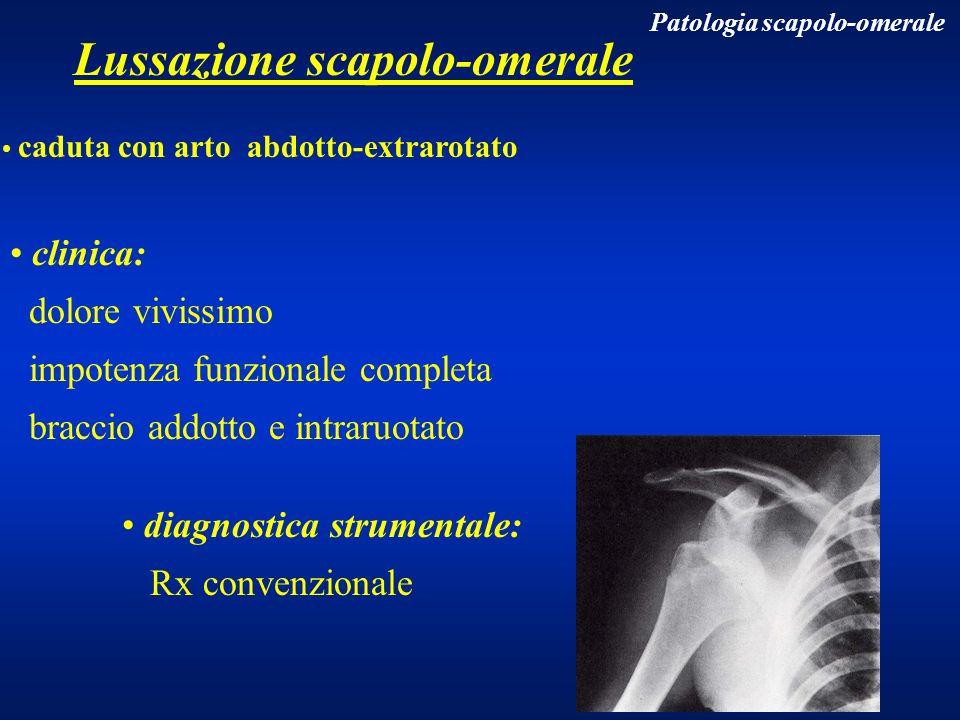 Lussazione scapolo-omerale caduta con arto abdotto-extrarotato clinica: dolore vivissimo impotenza funzionale completa braccio addotto e intraruotato