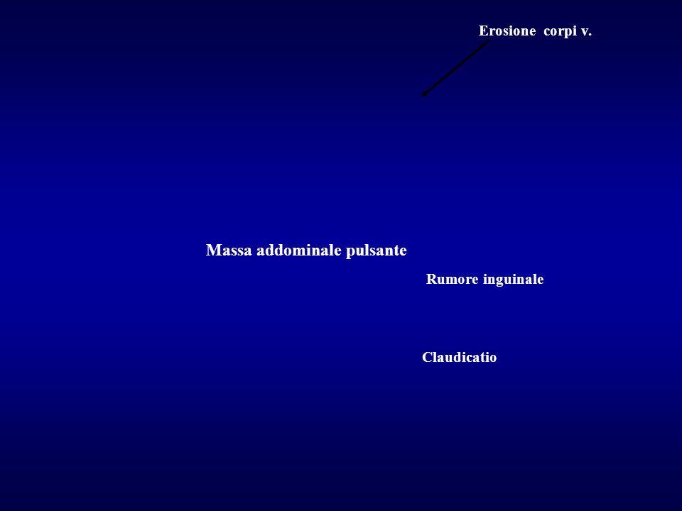 Claudicatio Rumore inguinale Massa addominale pulsante Erosione corpi v.