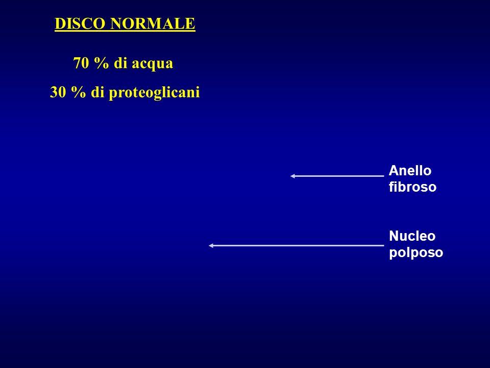 Anello fibroso Nucleo polposo DISCO NORMALE 70 % di acqua 30 % di proteoglicani