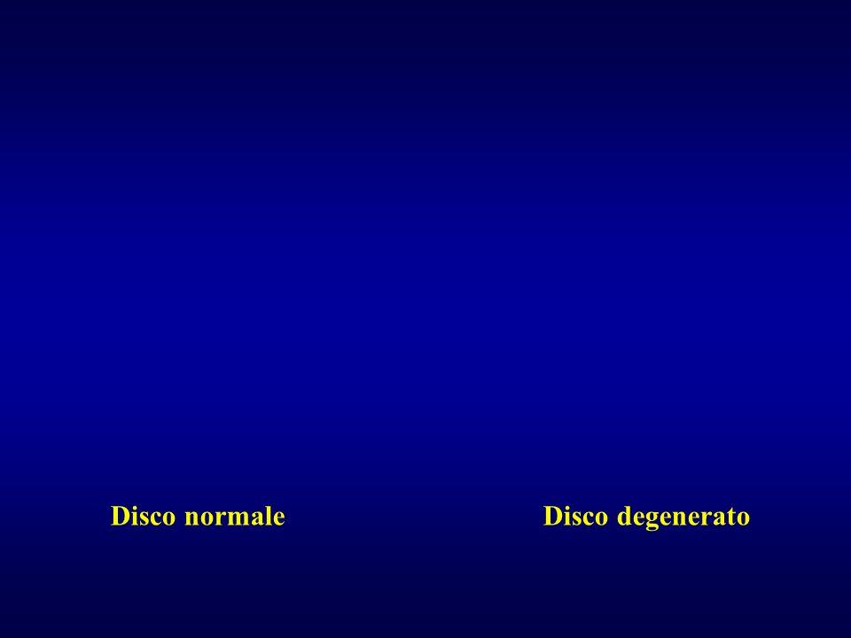 Disco normale Disco degenerato