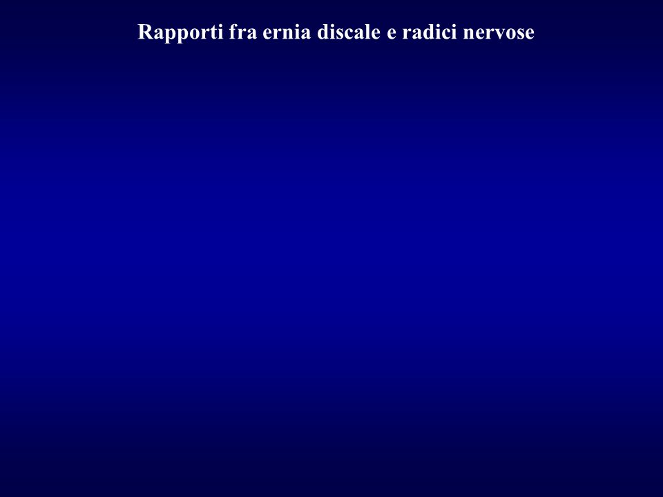 Rapporti fra ernia discale e radici nervose