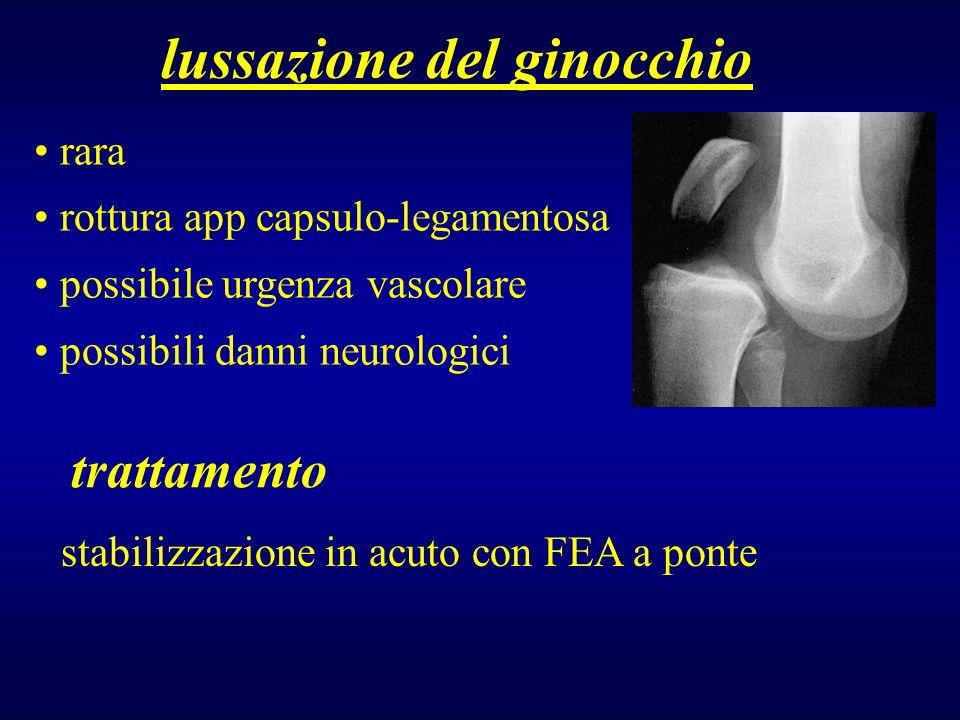 lussazione del ginocchio rara rottura app capsulo-legamentosa possibile urgenza vascolare possibili danni neurologici trattamento stabilizzazione in a