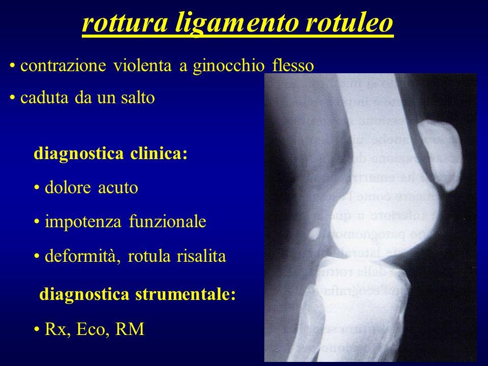 rottura ligamento rotuleo contrazione violenta a ginocchio flesso caduta da un salto diagnostica clinica: dolore acuto impotenza funzionale deformità,