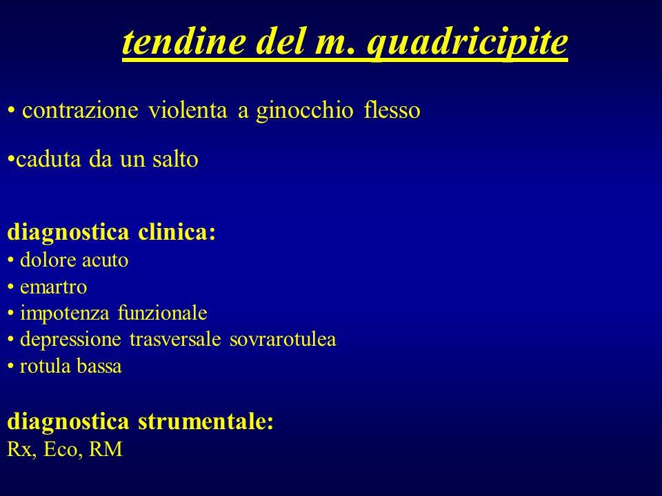 tendine del m. quadricipite contrazione violenta a ginocchio flesso caduta da un salto diagnostica clinica: dolore acuto emartro impotenza funzionale