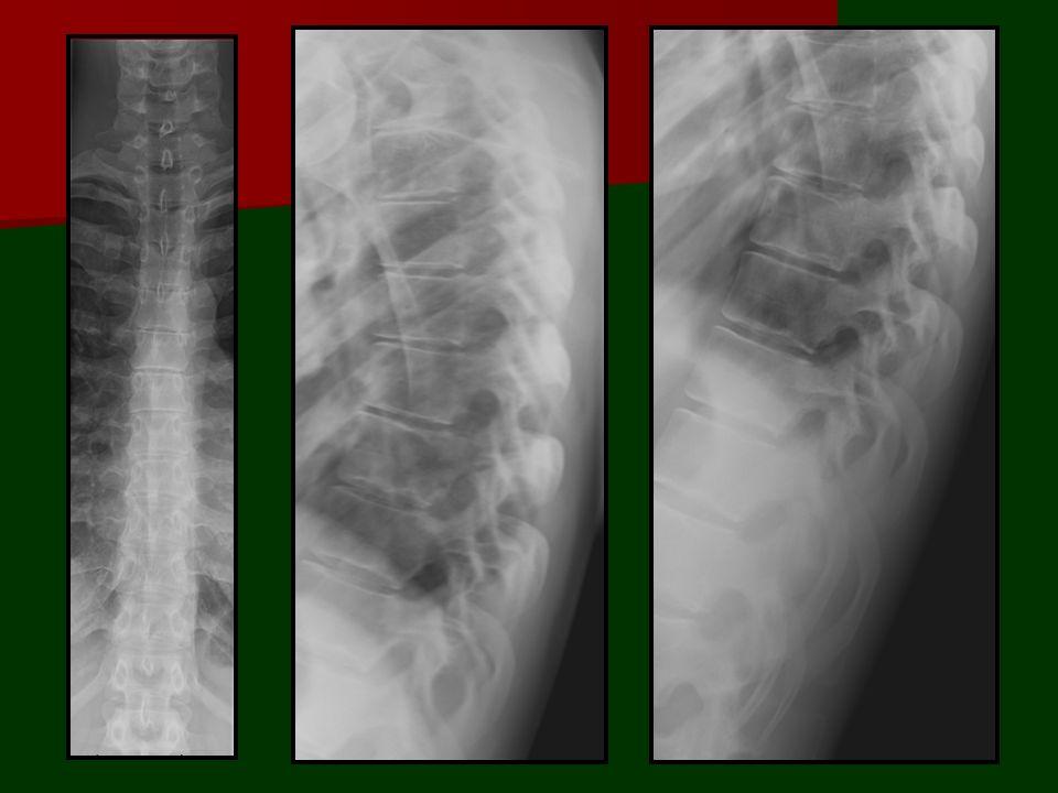 CONTENUTO del canale vertebrale Sono presenti 4 compartimenti disposti in cilindri concentrici separati dai tre foglietti meningei: Spazio epidurale Spazio subdurale Spazio subaracnoideo Spazio subpiale: midollo e radici nervose.