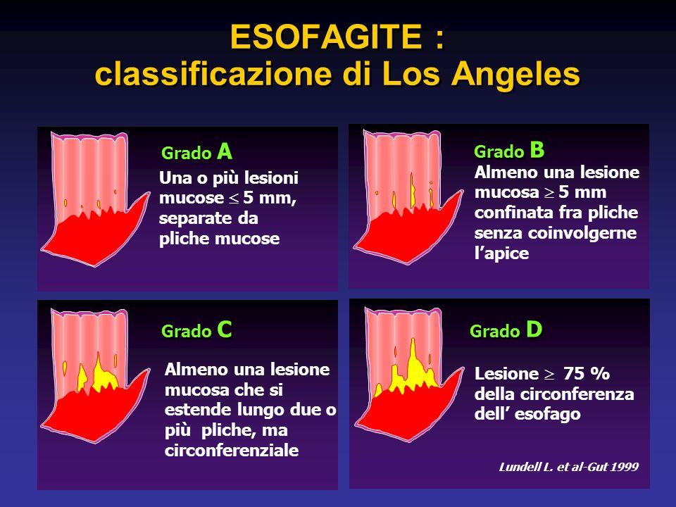 Grado D Lesione 75 % della circonferenza dell esofago ESOFAGITE : classificazione di Los Angeles Lundell L.