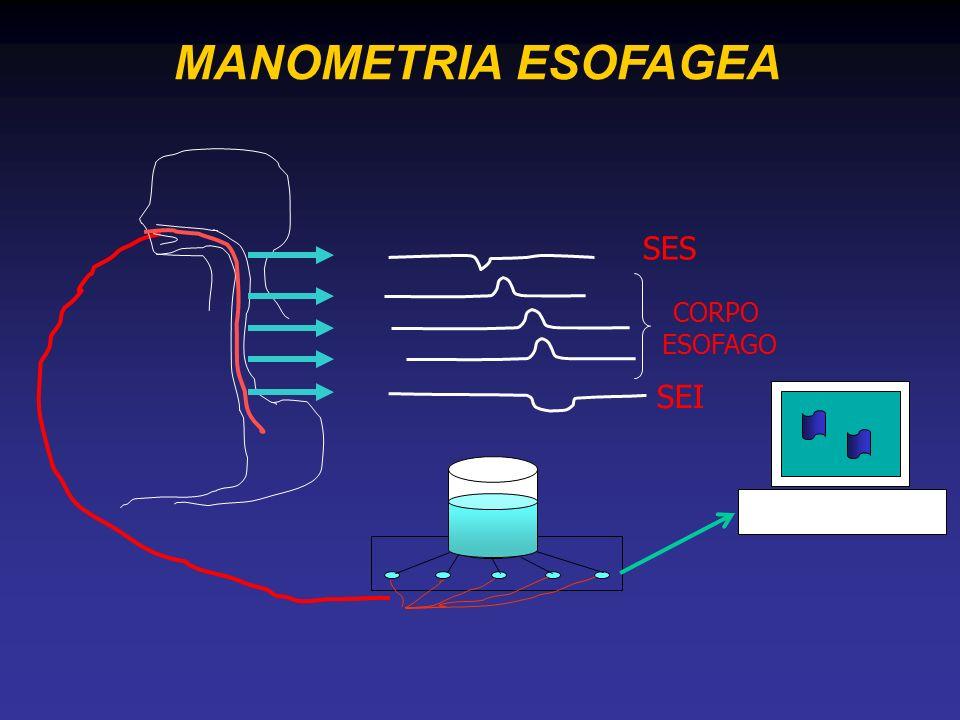 MANOMETRIA ESOFAGEA SEI SES CORPO ESOFAGO