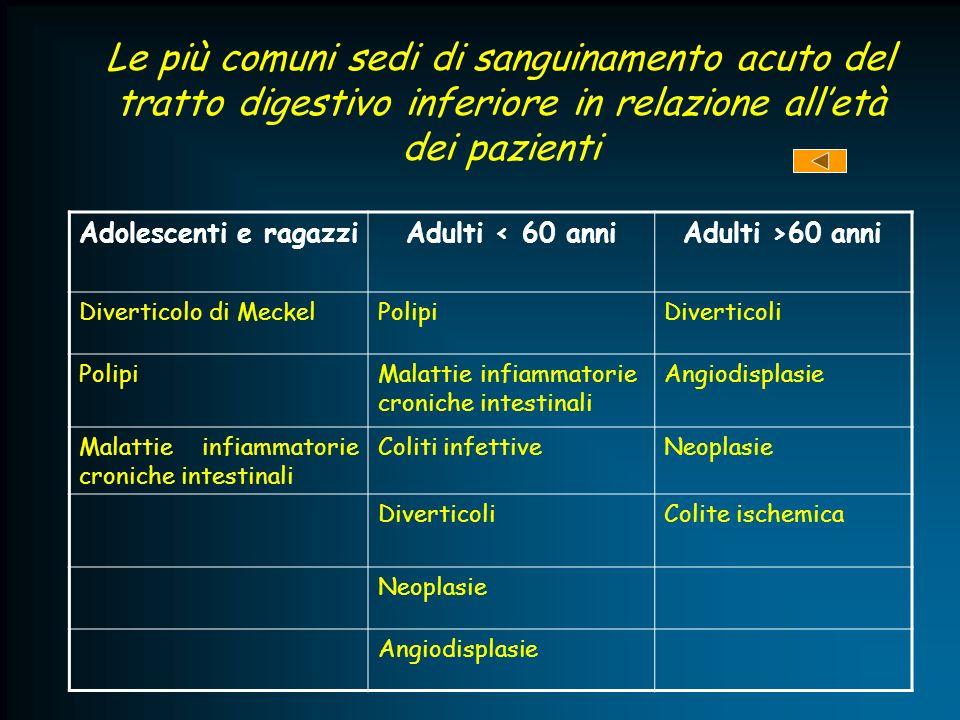 Le più comuni sedi di sanguinamento acuto del tratto digestivo inferiore in relazione alletà dei pazienti Adolescenti e ragazziAdulti < 60 anniAdulti