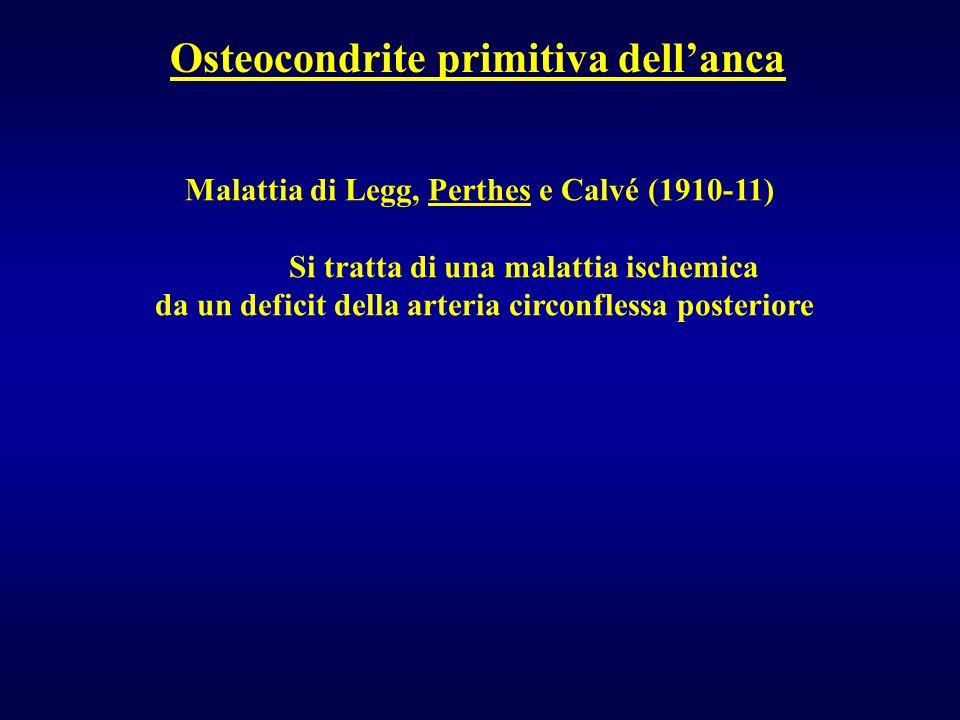 Osteocondrite primitiva dellanca Malattia di Legg, Perthes e Calvé (1910-11) Si tratta di una malattia ischemica da un deficit della arteria circonfle