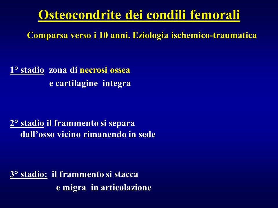 Osteocondrite dei condili femorali 1° stadio zona di necrosi ossea e cartilagine integra 2° stadio il frammento si separa dallosso vicino rimanendo in
