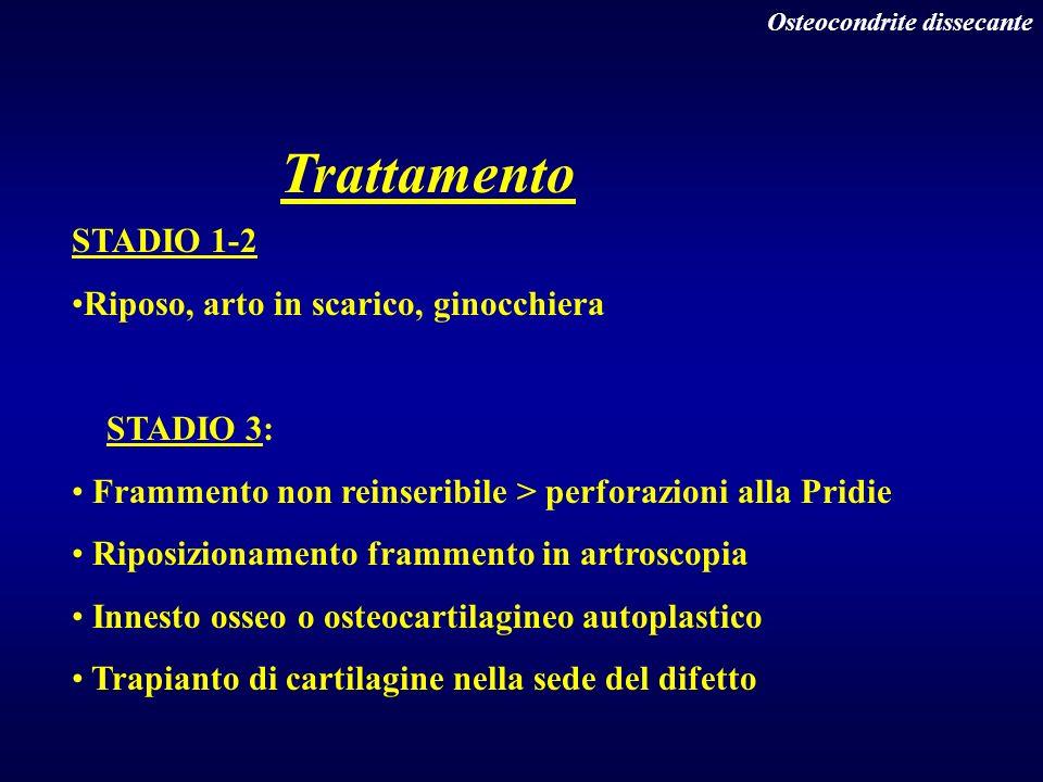 Osteocondrite dissecante Trattamento STADIO 1-2 Riposo, arto in scarico, ginocchiera STADIO 3: Frammento non reinseribile > perforazioni alla Pridie R