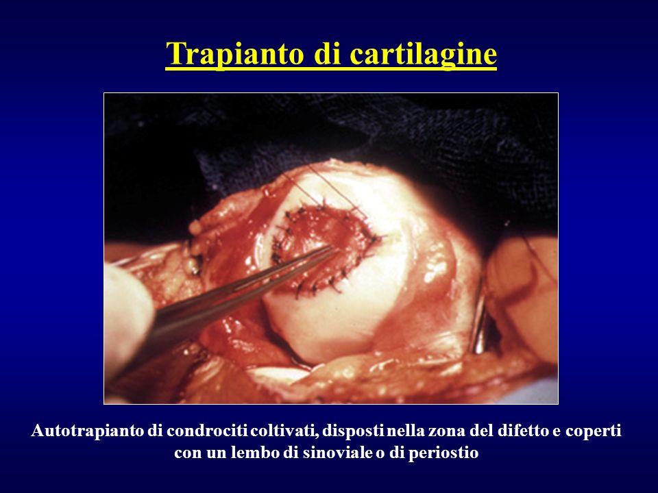 Autotrapianto di condrociti coltivati, disposti nella zona del difetto e coperti con un lembo di sinoviale o di periostio Trapianto di cartilagine
