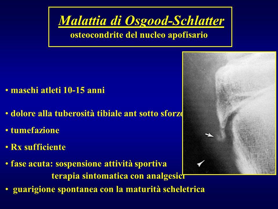 Malattia di Osgood-Schlatter osteocondrite del nucleo apofisario maschi atleti 10-15 anni dolore alla tuberosità tibiale ant sotto sforzo tumefazione