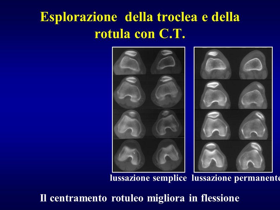Esplorazione della troclea e della rotula con C.T. lussazione semplice lussazione permanente Il centramento rotuleo migliora in flessione