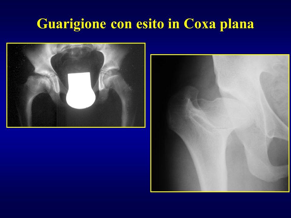 Ci sono osteocondriti post-riduzionali in lussazioni congenite Coxa plana in esiti L.C.A.