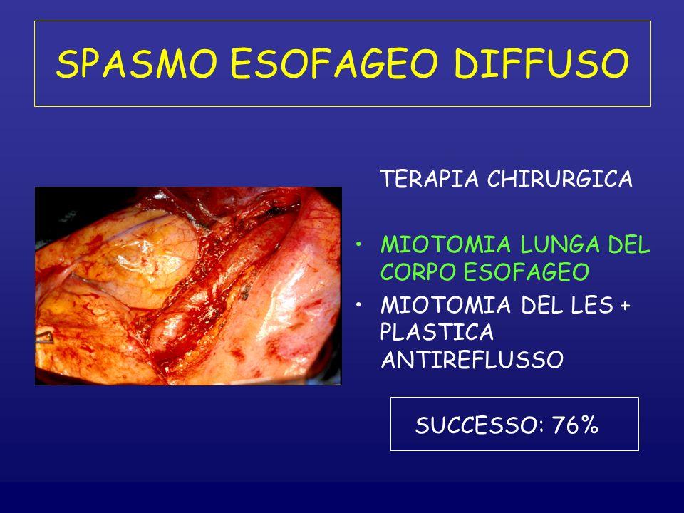 SPASMO ESOFAGEO DIFFUSO TERAPIA CHIRURGICA MIOTOMIA LUNGA DEL CORPO ESOFAGEO MIOTOMIA DEL LES + PLASTICA ANTIREFLUSSO SUCCESSO: 76%
