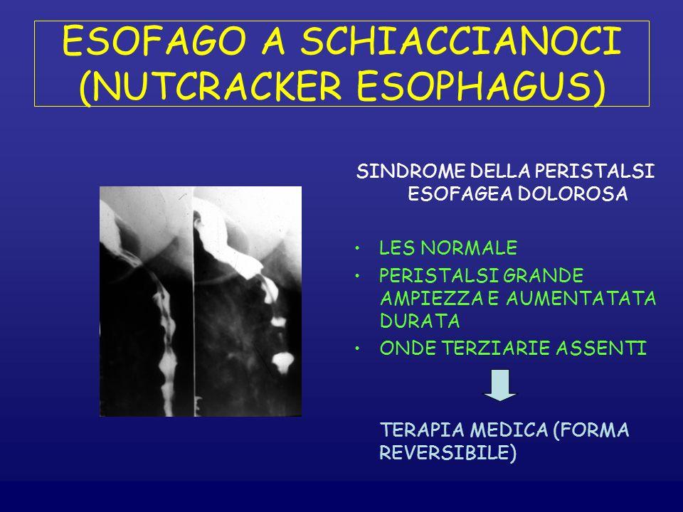 ESOFAGO A SCHIACCIANOCI (NUTCRACKER ESOPHAGUS) SINDROME DELLA PERISTALSI ESOFAGEA DOLOROSA LES NORMALE PERISTALSI GRANDE AMPIEZZA E AUMENTATATA DURATA ONDE TERZIARIE ASSENTI TERAPIA MEDICA (FORMA REVERSIBILE)