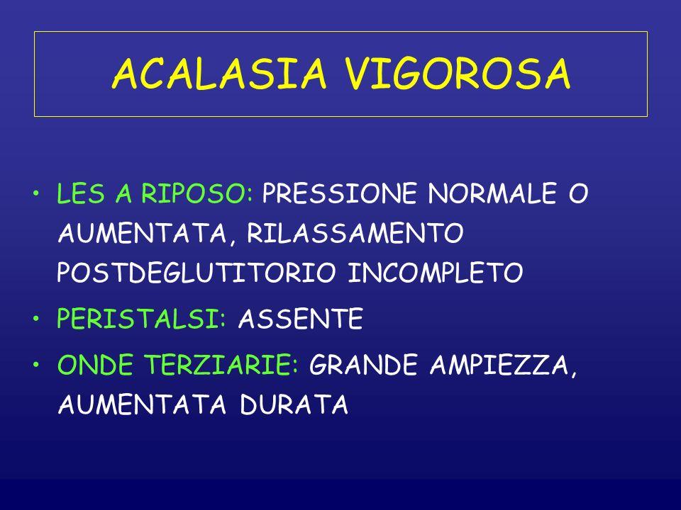 ACALASIA VIGOROSA LES A RIPOSO: PRESSIONE NORMALE O AUMENTATA, RILASSAMENTO POSTDEGLUTITORIO INCOMPLETO PERISTALSI: ASSENTE ONDE TERZIARIE: GRANDE AMPIEZZA, AUMENTATA DURATA