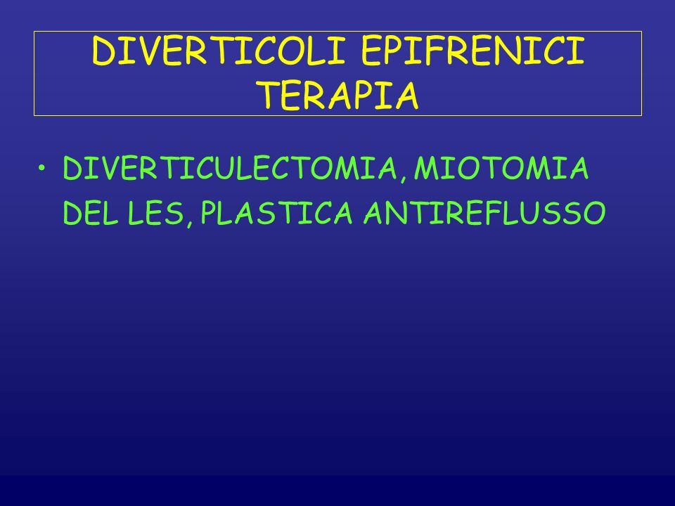 DIVERTICOLI EPIFRENICI TERAPIA DIVERTICULECTOMIA, MIOTOMIA DEL LES, PLASTICA ANTIREFLUSSO