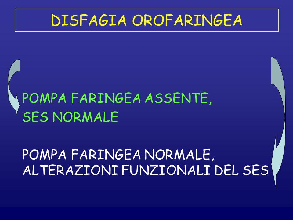 DISFAGIA OROFARINGEA POMPA FARINGEA ASSENTE, SES NORMALE POMPA FARINGEA NORMALE, ALTERAZIONI FUNZIONALI DEL SES