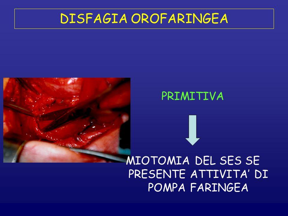 DISFAGIA OROFARINGEA PRIMITIVA MIOTOMIA DEL SES SE PRESENTE ATTIVITA DI POMPA FARINGEA